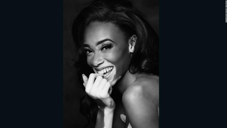 Winnie Harlow s changing the face of fashion