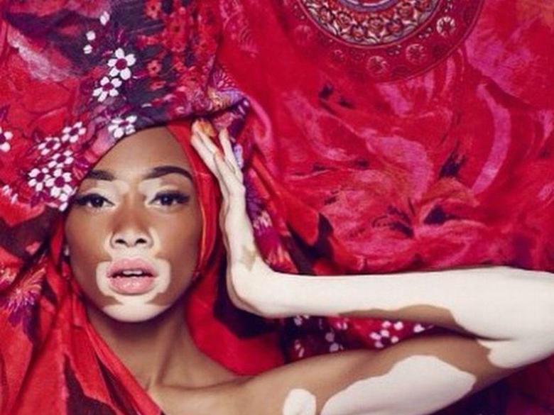 Rencontre avec Winnie Harlow égérie de Desigual pendant la fashion
