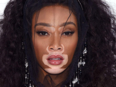 Winnie Harlow It s Beautiful That the Age of Cookie